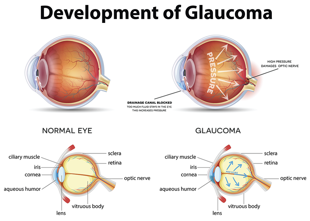 Glaucoma - Diagram Showing A Healthy Eye Vs. A Diseased Eye