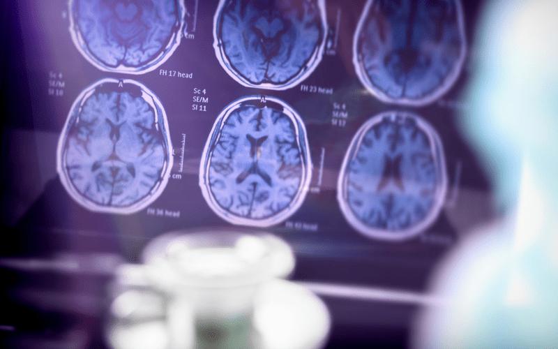 brain-imaging-from-neurlogical-scan